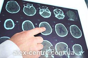 Где лучше сделать МРТ головного мозга