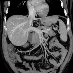 МРТ брюшной полости Киев