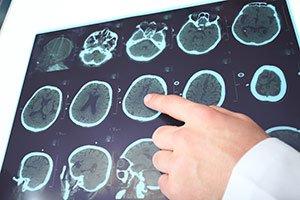 МРТ головного мозга Киев
