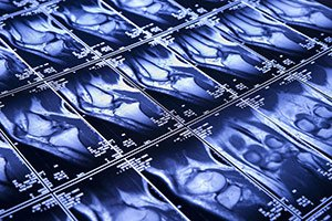 МРТ суставов цена
